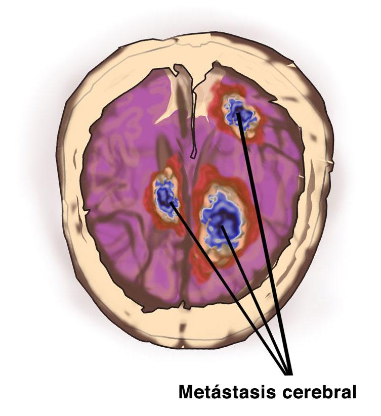 Metastasis-cerebral