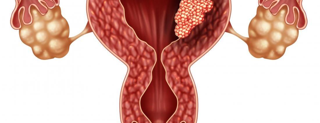 20190101_Nuevo Fármaco cáncer agresivo endometrio